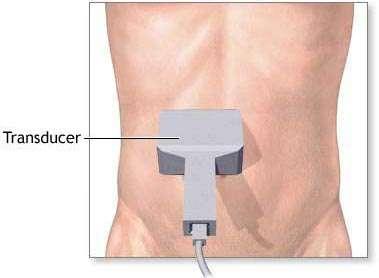 Ultrazvuk – specijalistička ordinacija za radiologiju