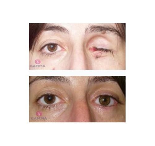Gamma medicina okuloplastična hirurgija i očna protetika
