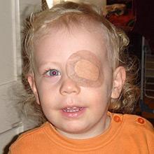 Stankov oftalmologija